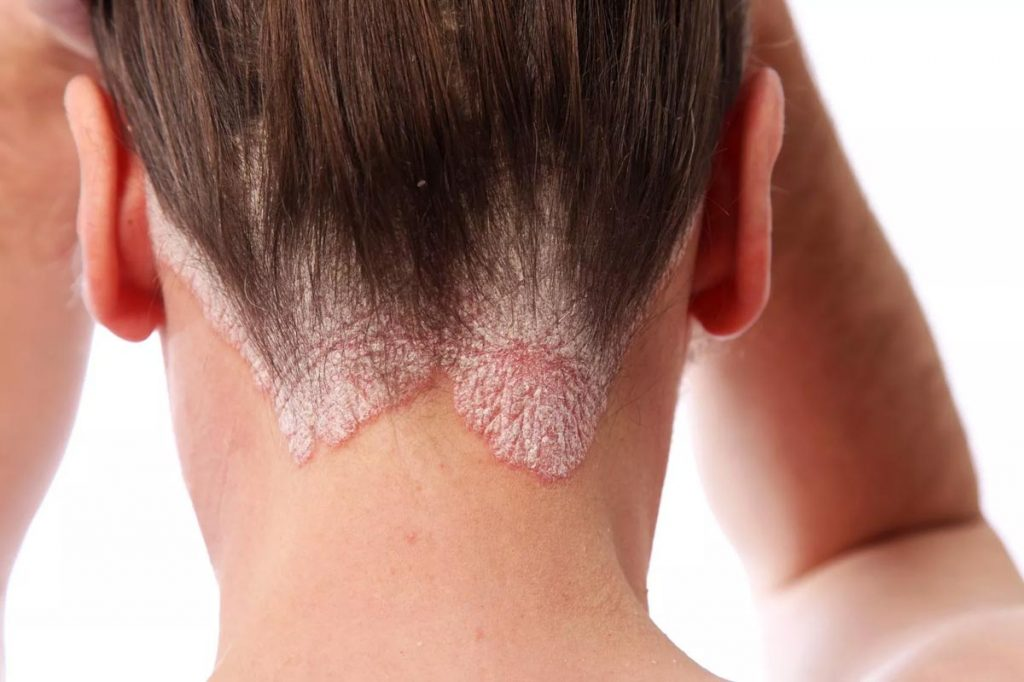 psoriasis troubles
